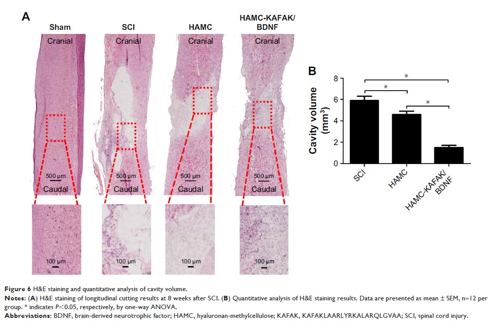 Figure 6 H&E staining and quantitative analysis of cavity volume.